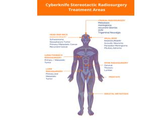 Cyberknife treatment and Surgery with Laser / Radiation therapy in India