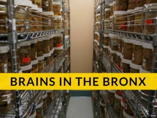 Brain Banker Who Keeps Thousands of Brains In His Lab In the Bronx