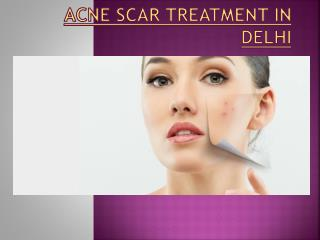 acne scar removal treatment in delhi