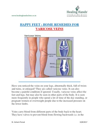 Get rid of varicose veins by Home remedies