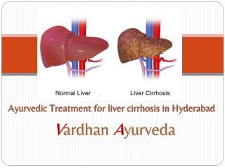 Ayurvedic Treatment for liver cirrhosis in Hyderabad | Vardhan Ayurveda