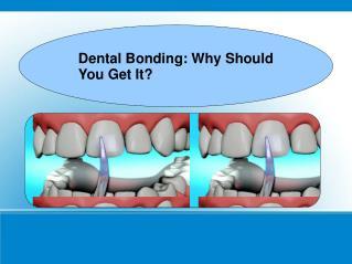 Dental Bonding Why Should You Get It