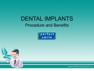 Dental Implants - Procedure and Benefits