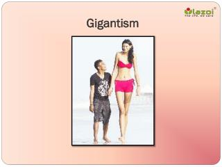 Gigantism: Definition, Causes, Symptoms and treatment