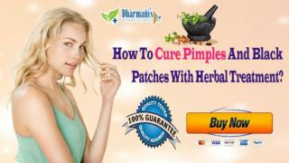 How To Cure Pimples And Black Patches With Herbal Treatment?