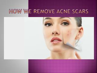 How we remove acne scars