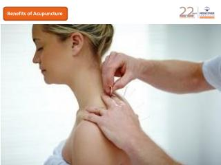 Benefits of acupuncture for stress reduction