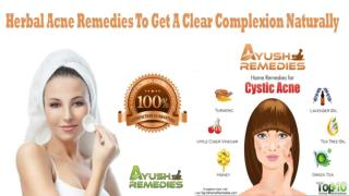 Herbal Acne Remedies To Get A Clear Complexion Naturally