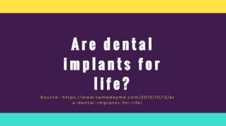 Are dental implants for life?