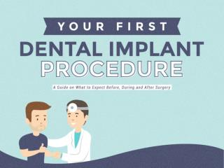 Your First Dental Implant Procedure