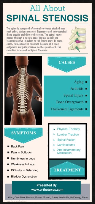 All About Spinal Stenosis