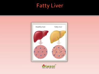Fatty Liver : Overview, symptoms, causes, risk factor, diagnosis and treatment