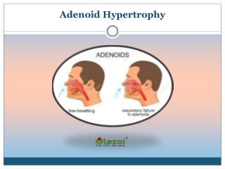 Adenoid hypertrophy Causes, Symptoms, Diagnosis, Prevention Treatment in India