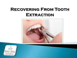 Lithia Dentist -Tooth extraction Aftercare & Recovery Tips | Bridges Dental
