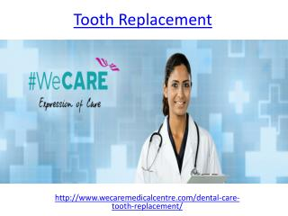 Affordable Tooth Replacement options in Dubai
