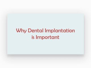 Why Dental Implantation is Important