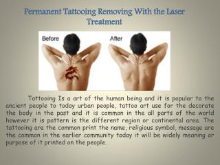 Permanent Tattooing Removing With the Laser Treatment