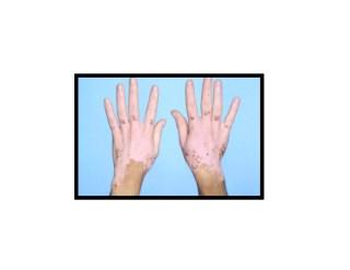 Vitiligo Was Hilft Wirklich, Vitiligo Komplett Geheilt, Kann Vitiligo Auch Wieder Verschwinden