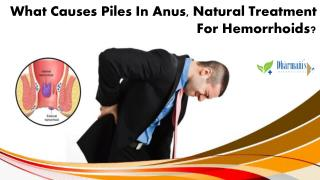 What Causes Piles in Anus, Natural Treatment for Hemorrhoids?