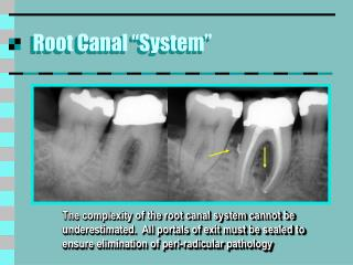 "Root Canal ""System"""