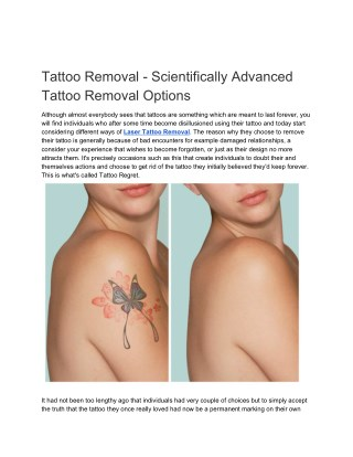 Tattoo Removal - Scientifically Advanced Tattoo Removal Options