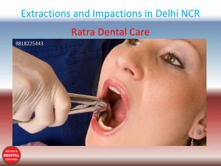 Extractions and Impactions in Delhi NCR