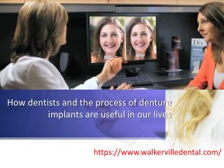 How dentists and the process of denture implants are useful in our lives