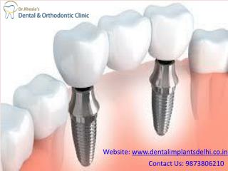 Affordable Dentist in Delhi Dr. Khosla's Dental Clinic