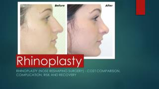 Complete guide for Rhinoplasty,All you need to know about rhinoplasty.
