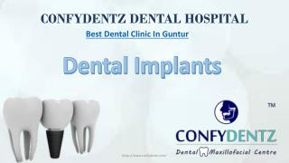 Dental Implants in Guntur