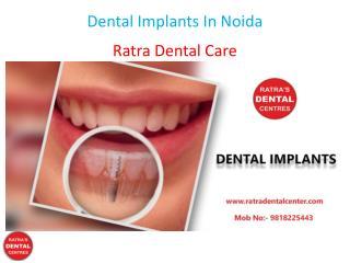 Dental Implants In Noida