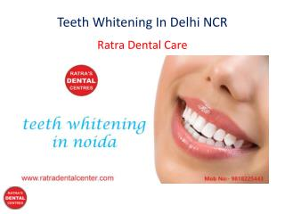 Teeth Whitening In Delhi NCR