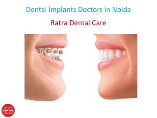 Dental Implants Doctors in Noida