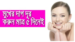 Remove the stains of the face in just 5 days ! Beauty Tips in Bangla 2018