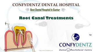 Root Canal Treatment Cost in Guntur   Root Canal Treatments In Guntur