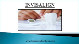 Top points to consider when finding Invisalign provider