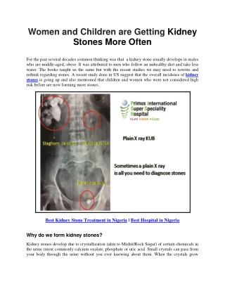 Women and Children are Getting Kidney Stones More Often