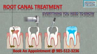 Root Canal Treatment in Tricity