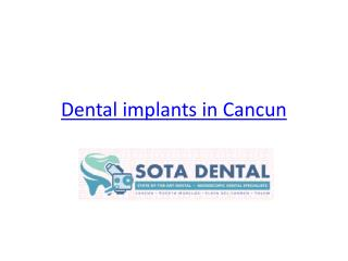 Dental implants in Cancun - www.sotadental.com