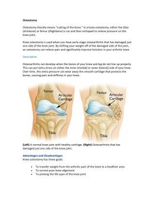 Osteotomy Surgery pdf | Shri Ramchandra Joint Relacement Centre  in Guntur |  Vijayawada | Prakasam | AP | India