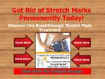 Get Rid of Stretch Marks Permanently Today