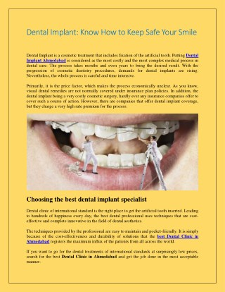 Dental Implant Know How to Keep Safe Your Smile