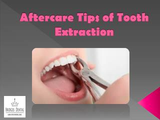 Best Aftercare Tips of Tooth Extraction by Brandon Dentist | Bridges Dental