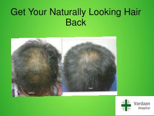 Get Your Naturally Looking Hair Back