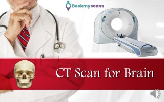 CT scan for Brain