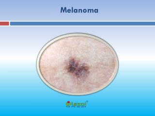 Melanoma: Causes, Symptoms, Daignosis, Prevention and Treatment Melanoma is the most dangerous type of skin cancer and i