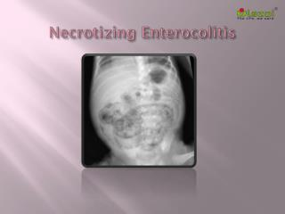 Necrotizing Enterocolitis: Causes, Symptoms, Daignosis, Prevention and Treatment