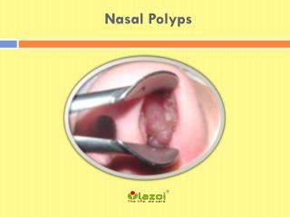 Nasal Polyps: Symptoms, causes, Diagnosis and Treatment