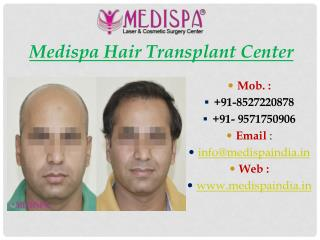 Best Hair Transplant Centre
