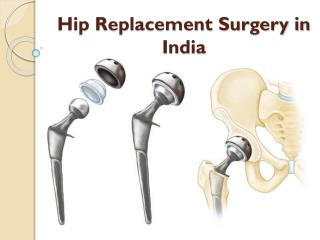 Cost of hip replacement Surgery in India